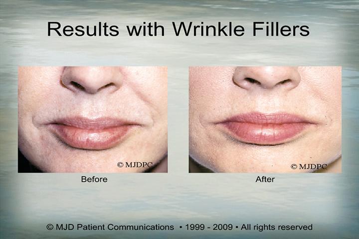 WrinkleFillers_p05