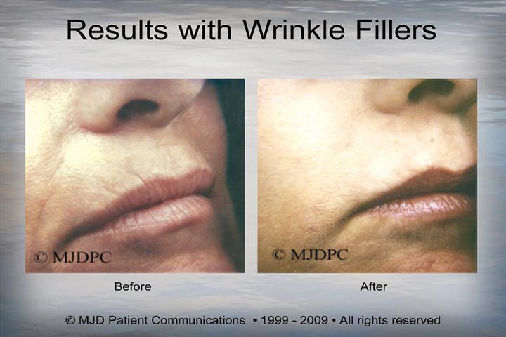 WrinkleFillers_p06