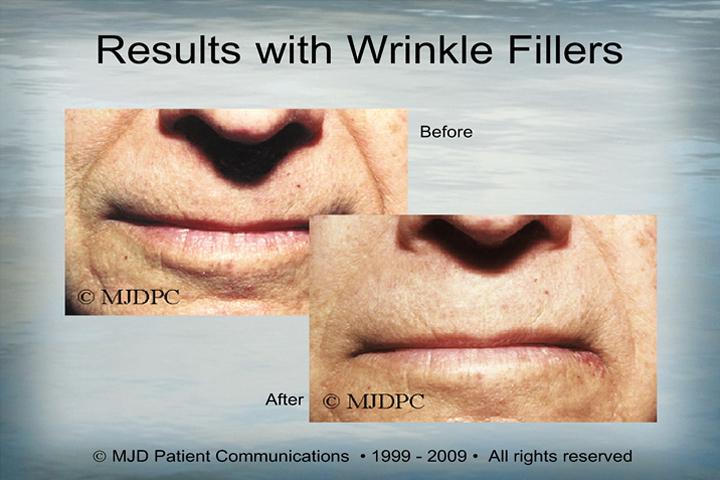 WrinkleFillers_p07
