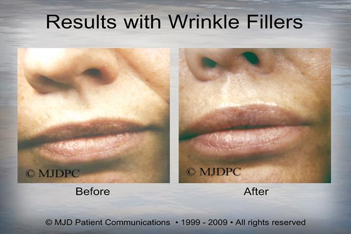 WrinkleFillers_p10