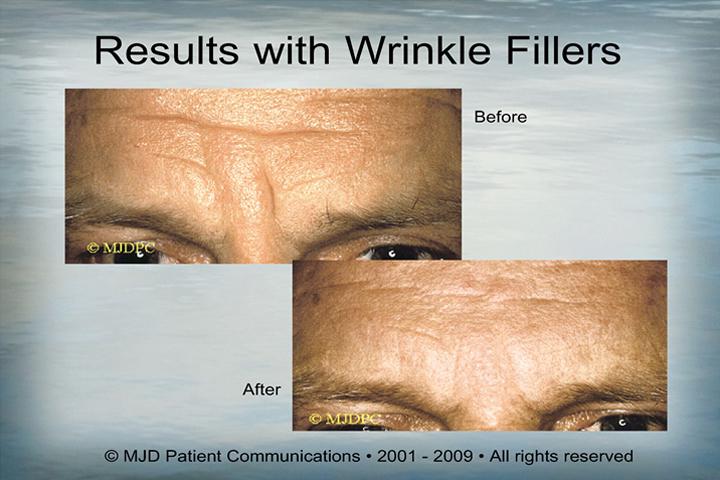 WrinkleFillers_p15