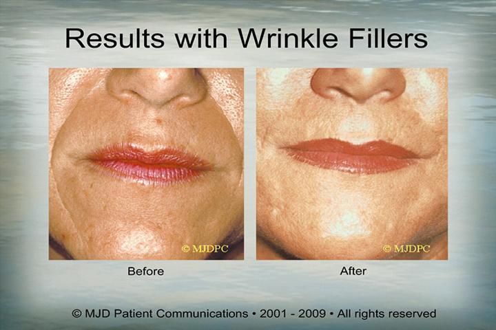 WrinkleFillers_p17