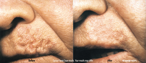 facial_scars2