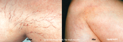 sclerotherapy1
