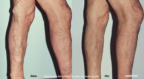 varicose_vein_treatments1