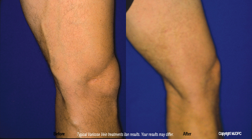 varicose_vein_treatments2
