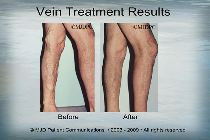 Varicose Vein Treatments Alan Kling M D