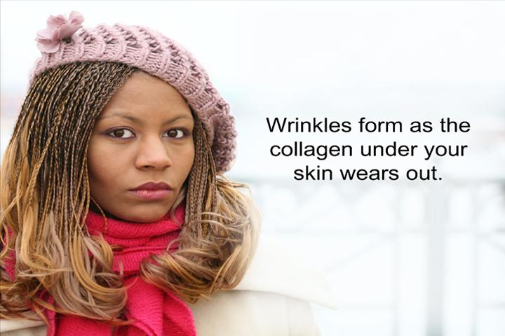 WrinkleFillers_p02