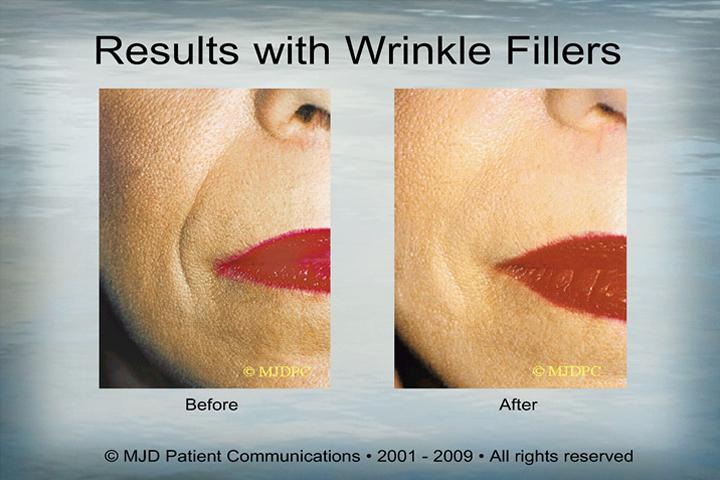 WrinkleFillers_p11