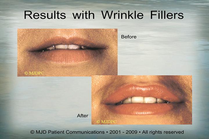 WrinkleFillers_p13