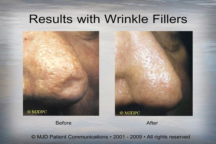 WrinkleFillers_p14