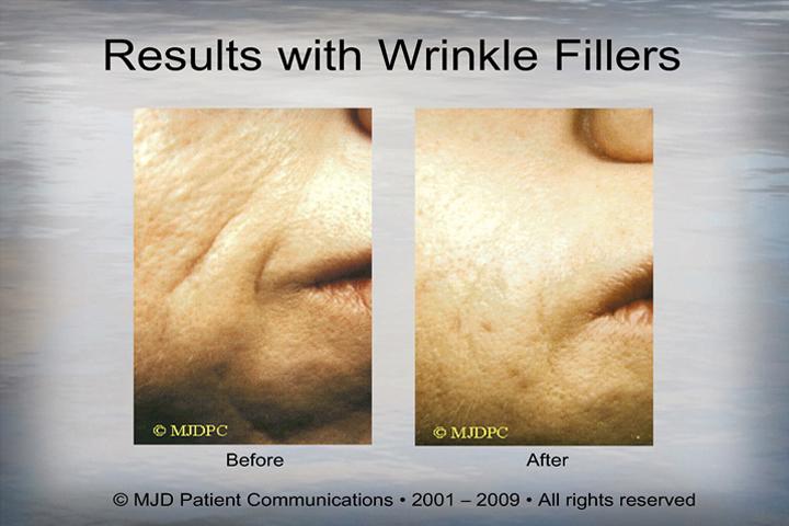 WrinkleFillers_p18