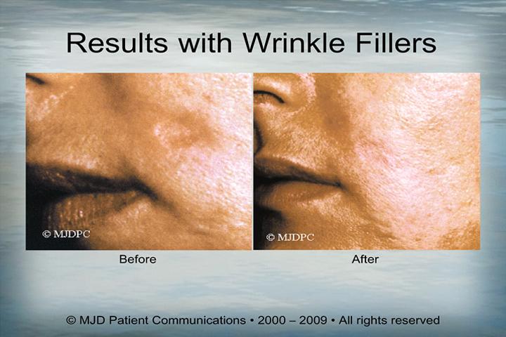WrinkleFillers_p19